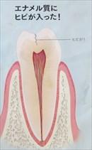 toothcrack2